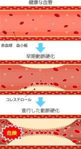 血管イラスト